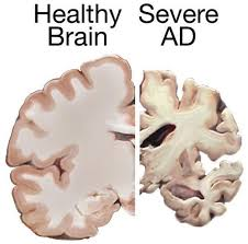 Healthy brain vs alzheimers