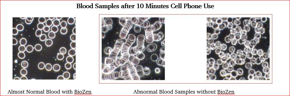 Blood Samples with Cell Phone Use